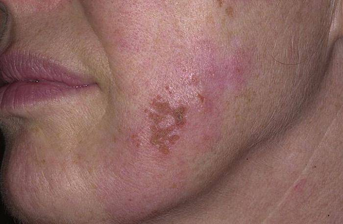 Герпес на щеке фото, причины, лечение