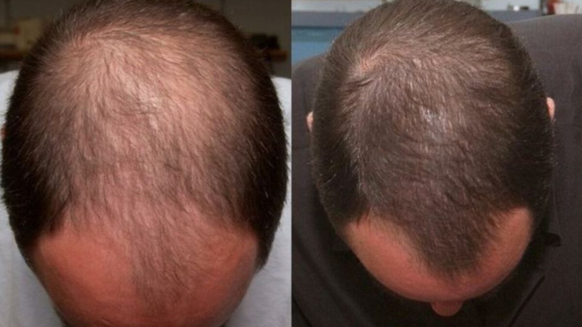 Лекарственные средства от выпадения волос у мужчин