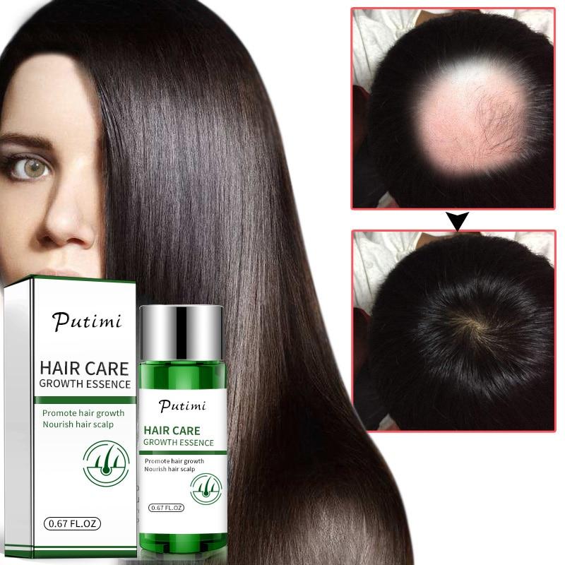 Самые эффективные аптечные средства для роста волос