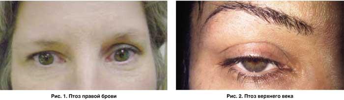 Птоз глаза – лечение верхнего века без операции