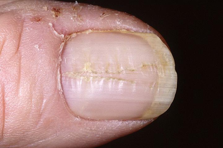 Дистрофия ногтевой пластины: 7 разновидностей болезни
