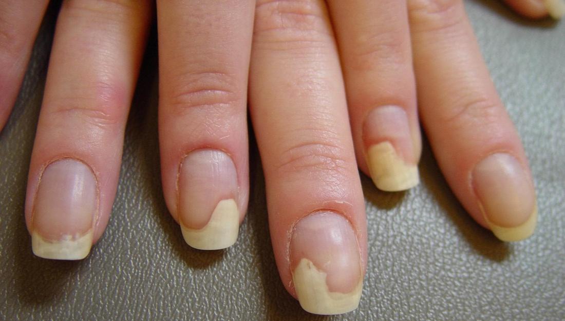 Что такое ониходистрофия ногтей и как с ней бороться
