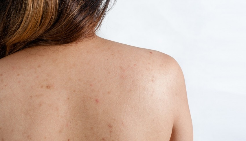 Причина прыщей на спине у женщин, методы лечения