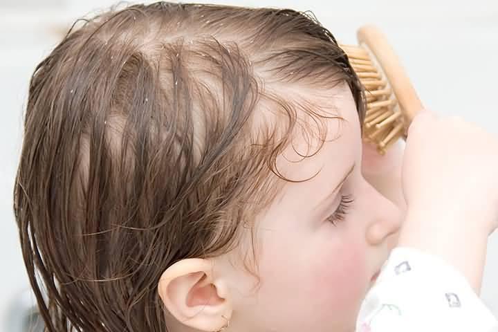 Если волосы начали выпадать у детей в раннем возрасте