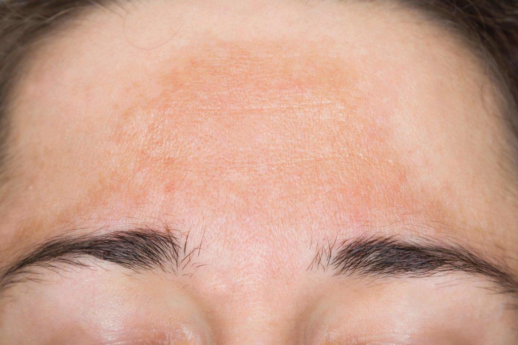 Появившаяся мелазма на лице— показатель пигментации