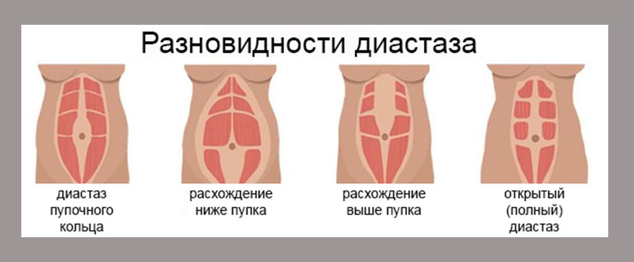 Диастаз прямых мышц живота – диагностика, лечение и операция