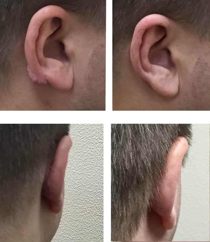 Пластика ушей – одна из самых безопасных операций