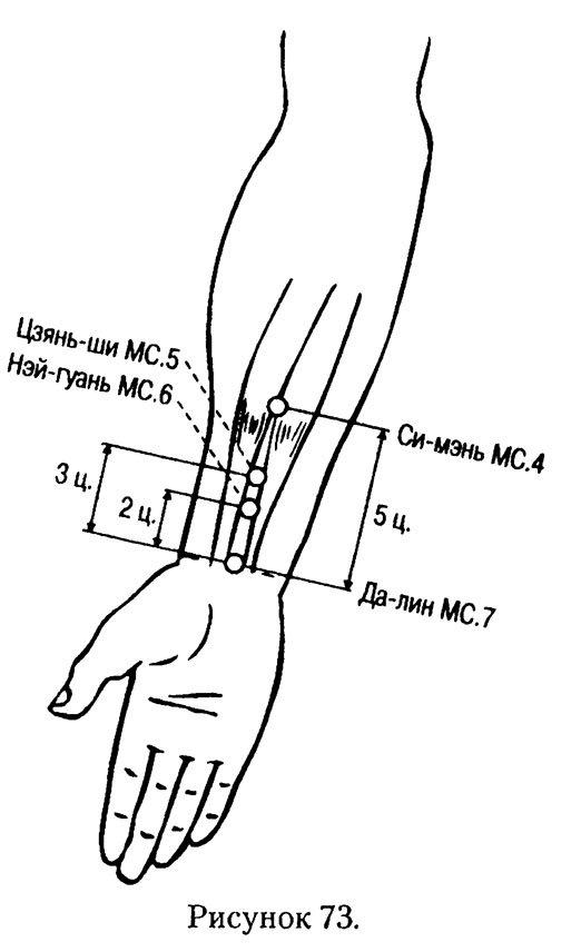 Точки акупунктуры на теле человека (фото)