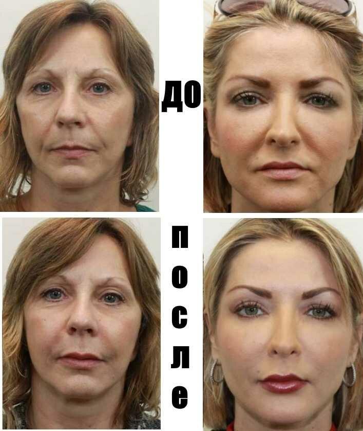 Липофилинг лица: описание, плюсы и минусы, результат и реабилитация