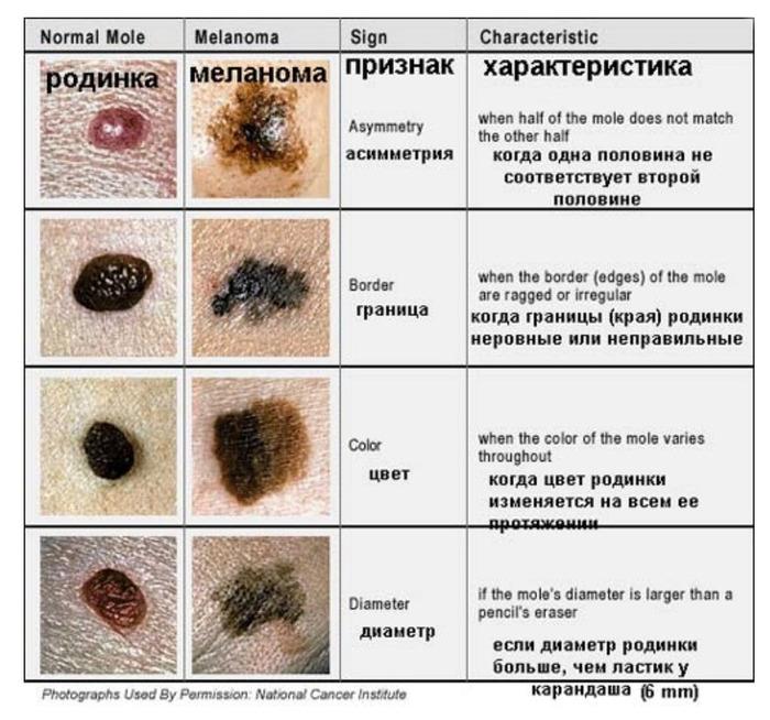 Меланома кожи: прогнозы жизни, фото начальной стадии, симптомы и признаки, диагностика и лечение