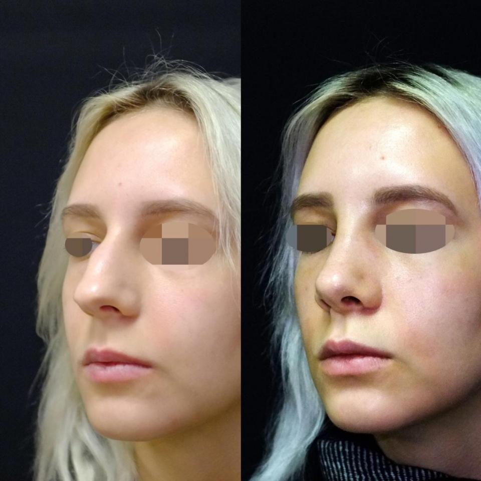 Лазерная операция на перегородке носа: виды и отзывы
