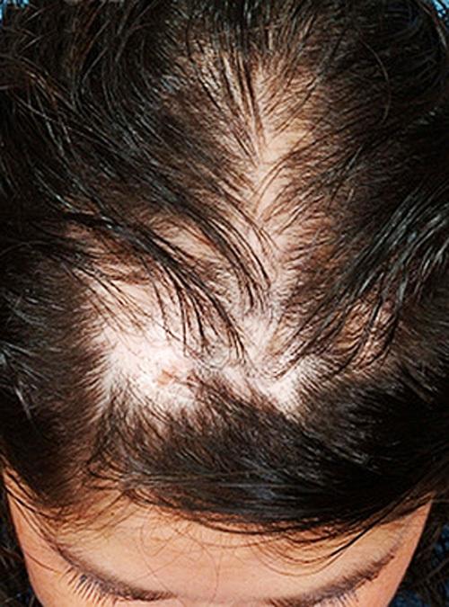 Очаговая алопеция - симптомы  и лечение