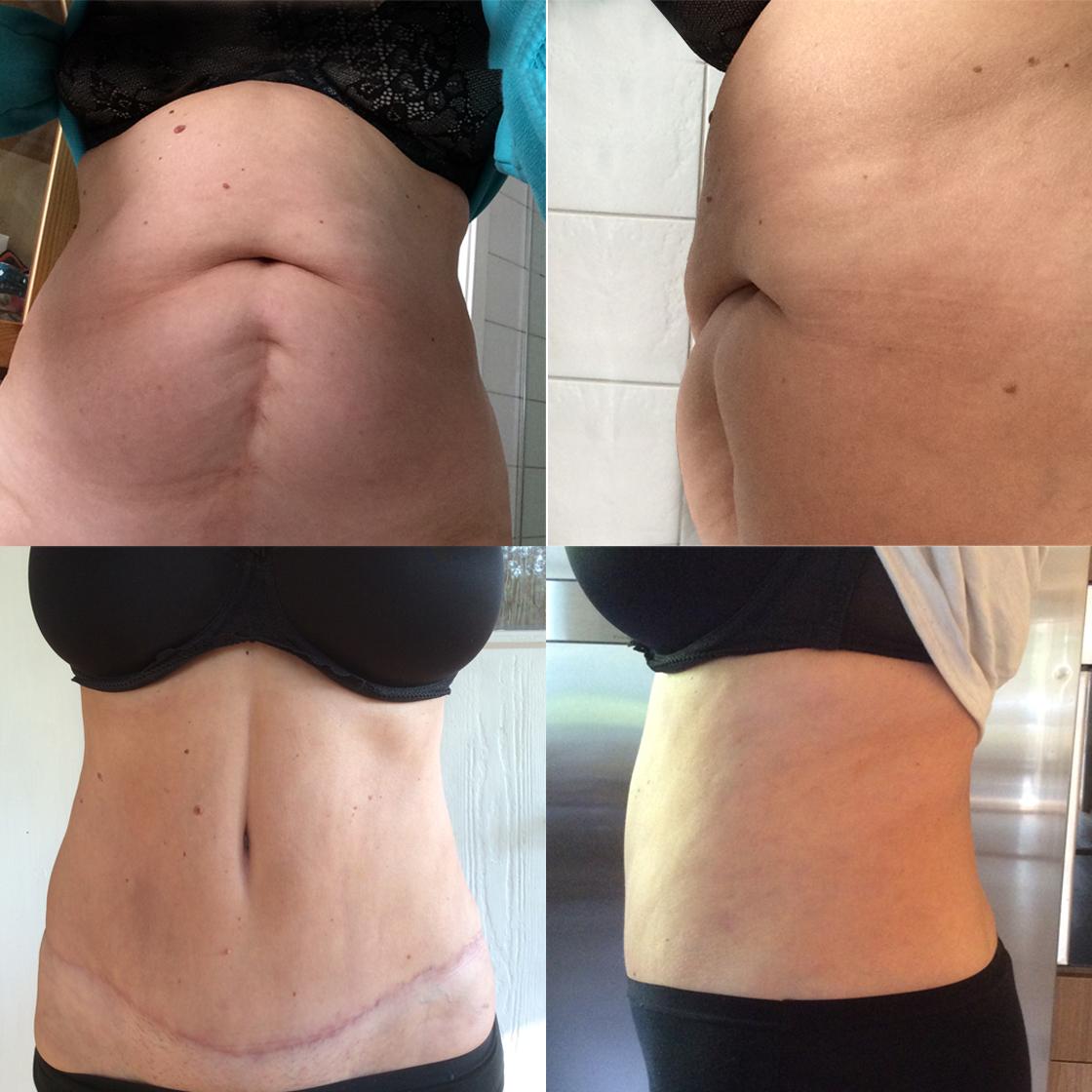Липосакция живота: фото до и после процедуры, противопоказания для ее проведения