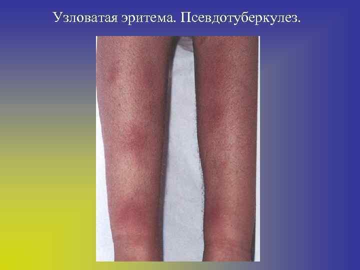 Узловая эритема нижних конечностей. причины, симптомы, лечение. мази, таблетки, народные средства