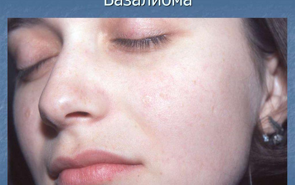 Базалиома. причины, симптомы, признаки, диагностика и лечение патологии :: polismed.com