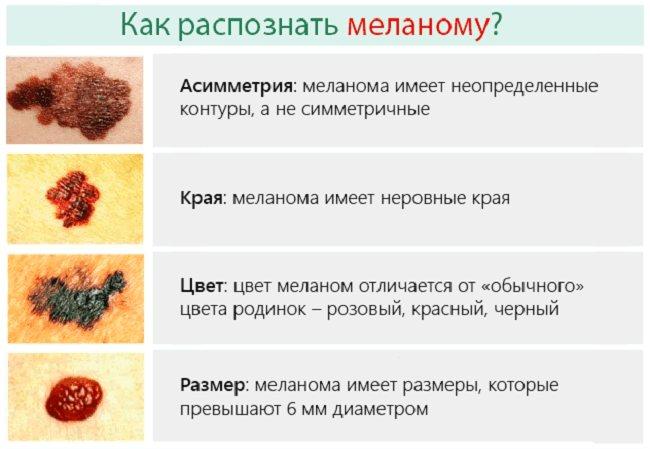Рак кожи: симптомы, причины и лечение