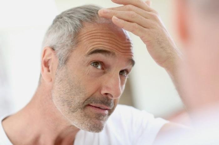 Ранняя седина – причины и лечение