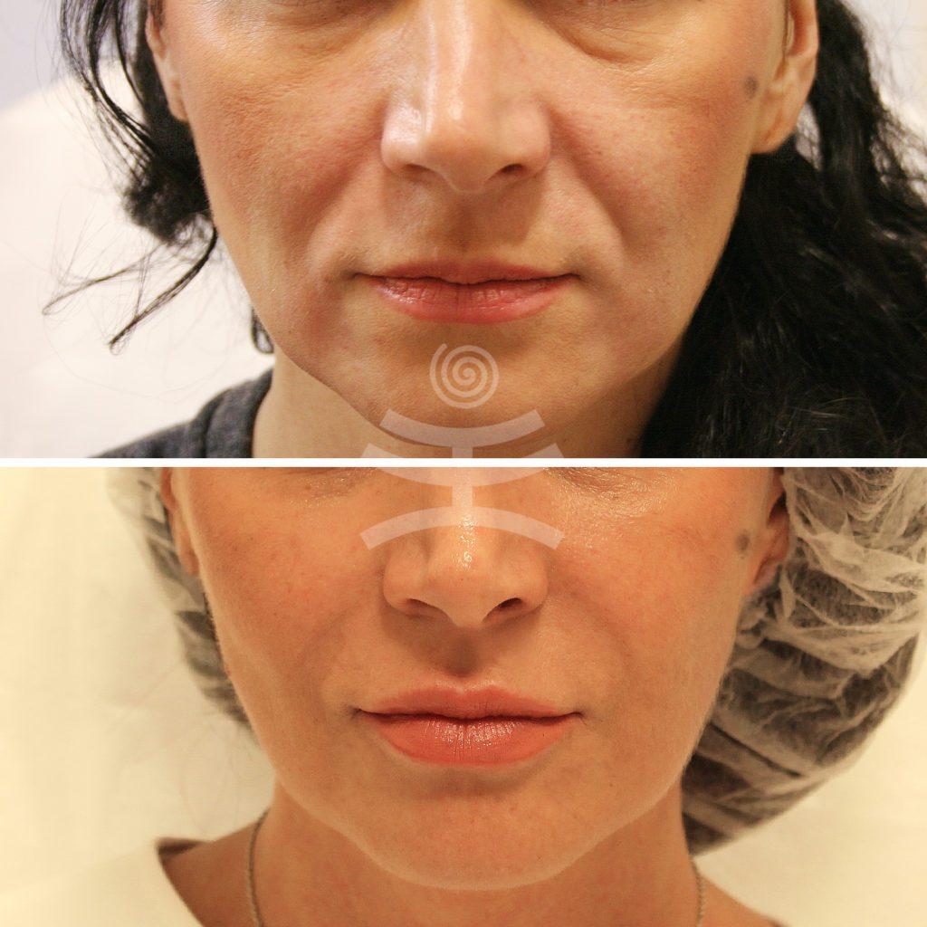 Филлеры для лица. что это в косметологии, какие лучше, фото до, после процедуры