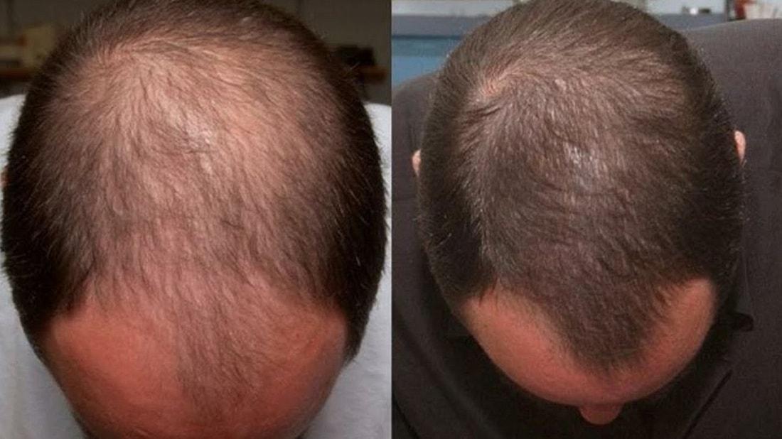 Потеря волос от избытка гормонов андрогенов