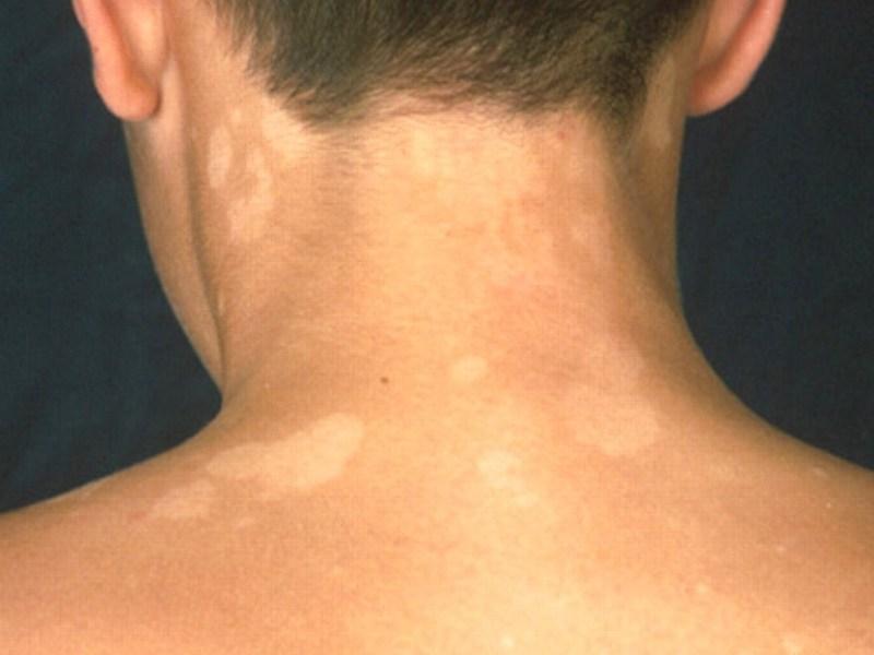 Стригущий лишай (трихофития) у человека, фото, начальная стадия, лечение