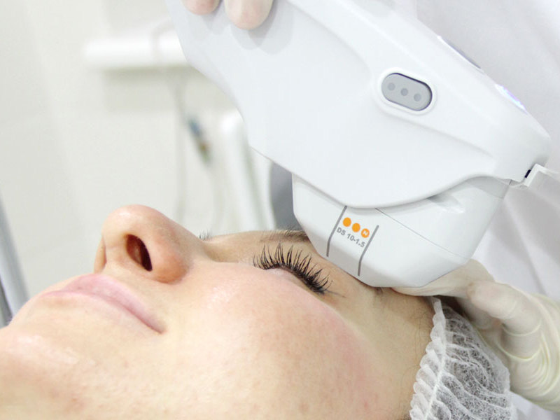 Ulthera лифтинг-smas: как проводится процедура на аппарате ulthera system