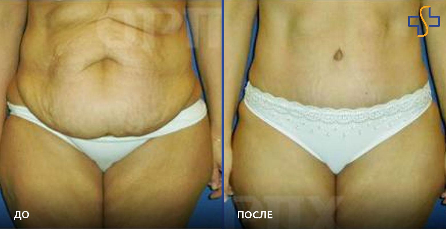 Абдоминопластика живота. что это за операция, как делается, фото до и после, показания и противопоказания, последствия