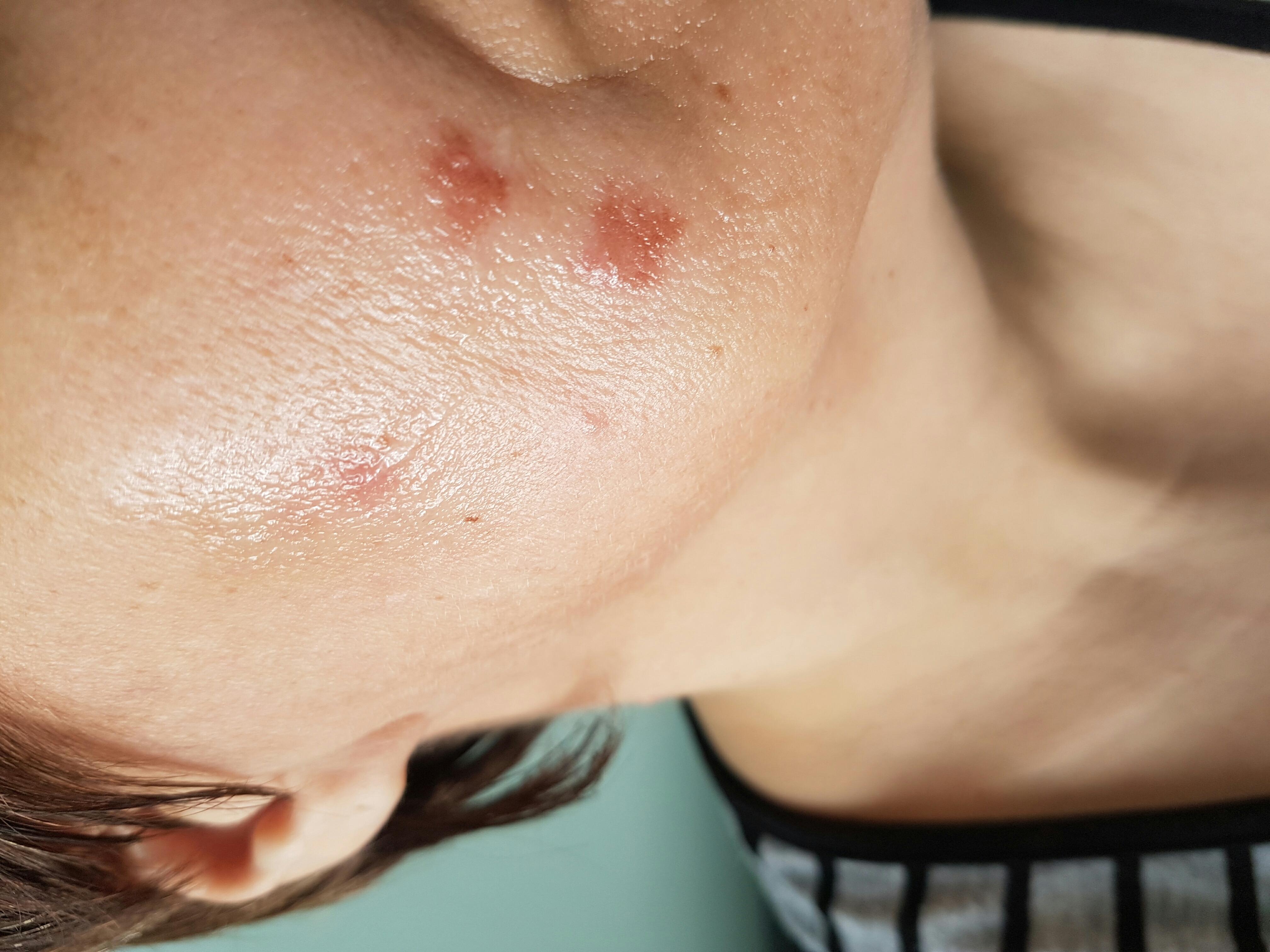Современное лечение стрептодермии у взрослых и детей