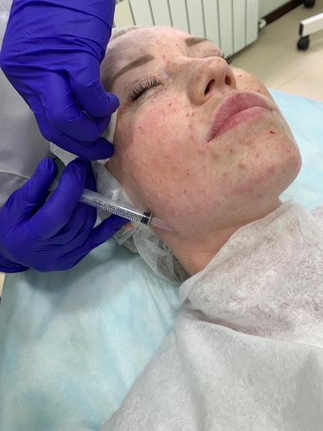 Процедуры для омоложения лица без операции после 50 лет: самые эффективные методики