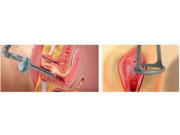 Коррекция формы половых губ