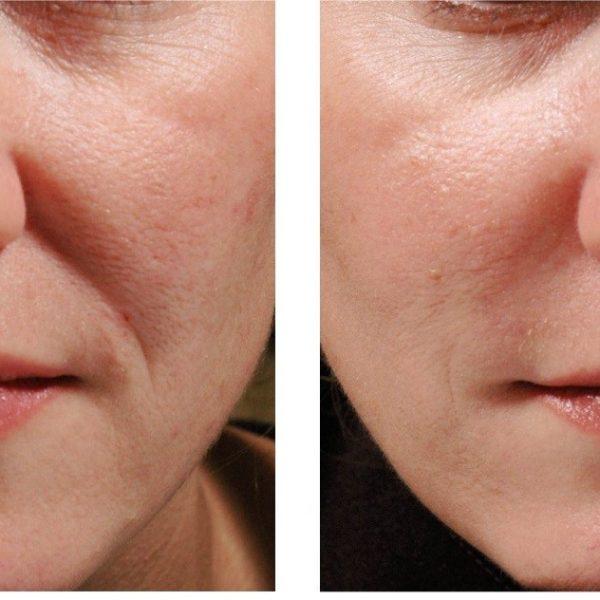 Как избавиться от морщин? ботокс, филлеры: до и после. как удалить морщины вокруг глаз - инъекции ботокса против морщин