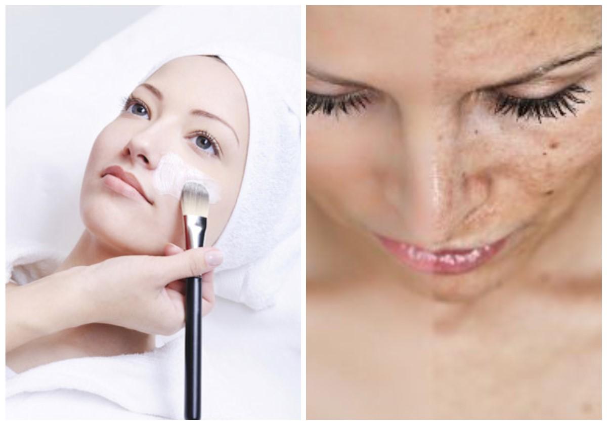 Глубокая чистка лица в домашних условиях – как правильно сделать очищение кожи дома, рецепты и советы