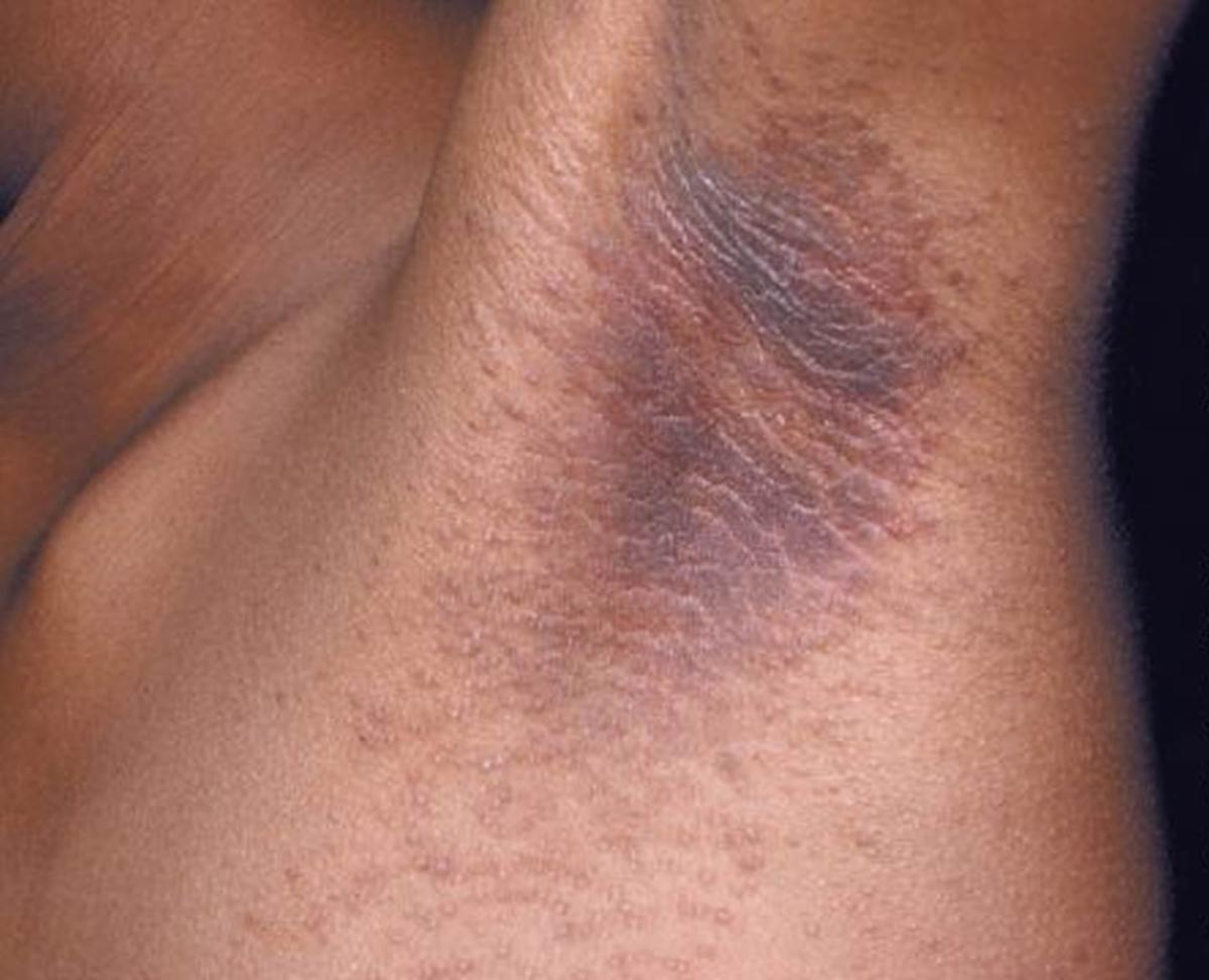 Эритразма: причины, симптомы, диагностика и лечение
