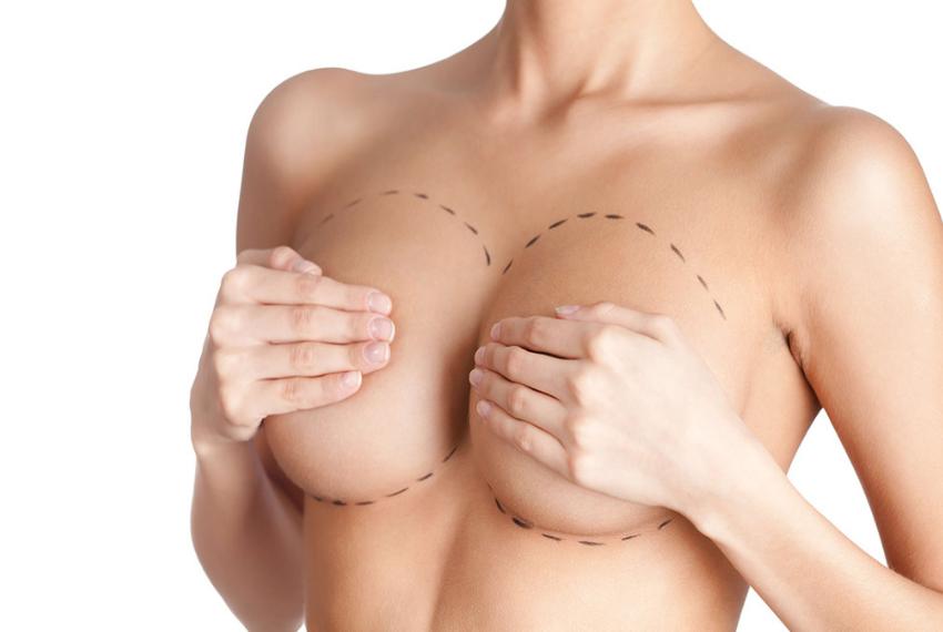 Как увеличить грудь без операций: 5 полезных советов