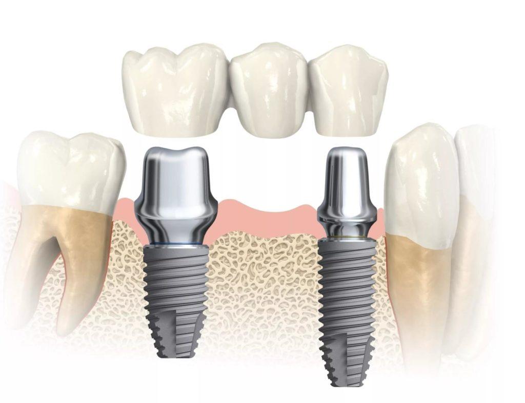 Имплантация зубов vip уровня в топ 1 клиниках москвы - немецкий имплантологический центр
