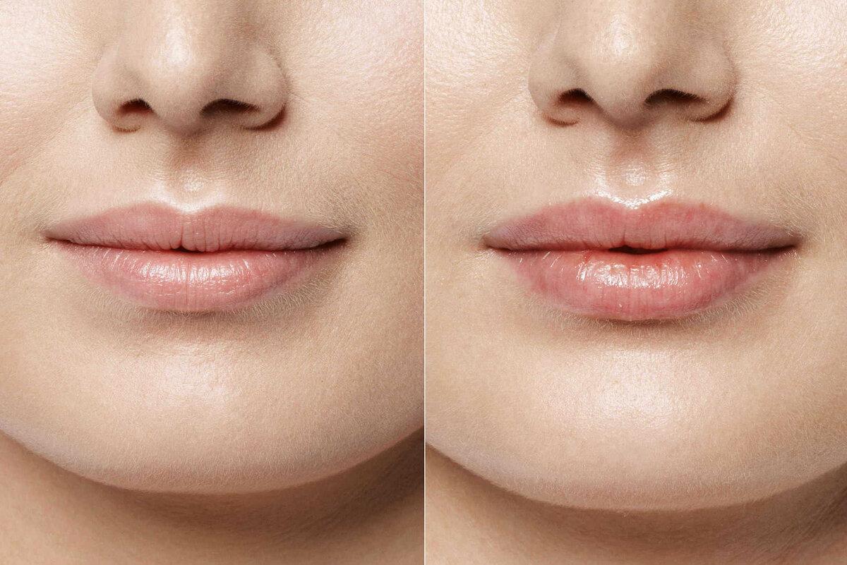 Чем увеличивают губы — характеристики филлеров для изменения объема и формы губ