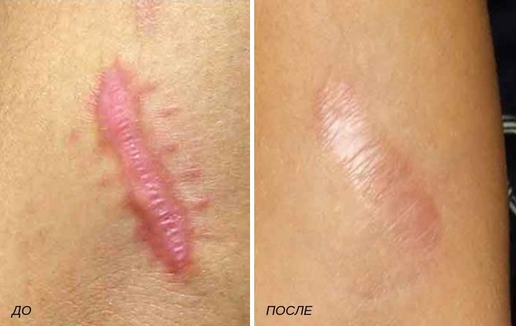 Келоидные рубцы после операции – что это такое, чем опасны. как выглядят келоидные рубцы. фото