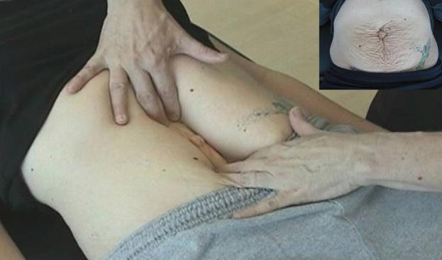 Диастаз мышц живота, проявляющийся после родов, профилактика и лечение