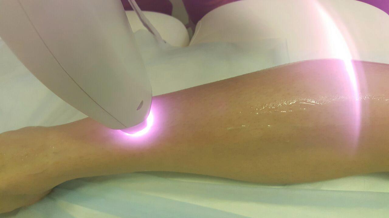 Современные технологии на страже женской красоты: какой лазер для эпиляции лучше