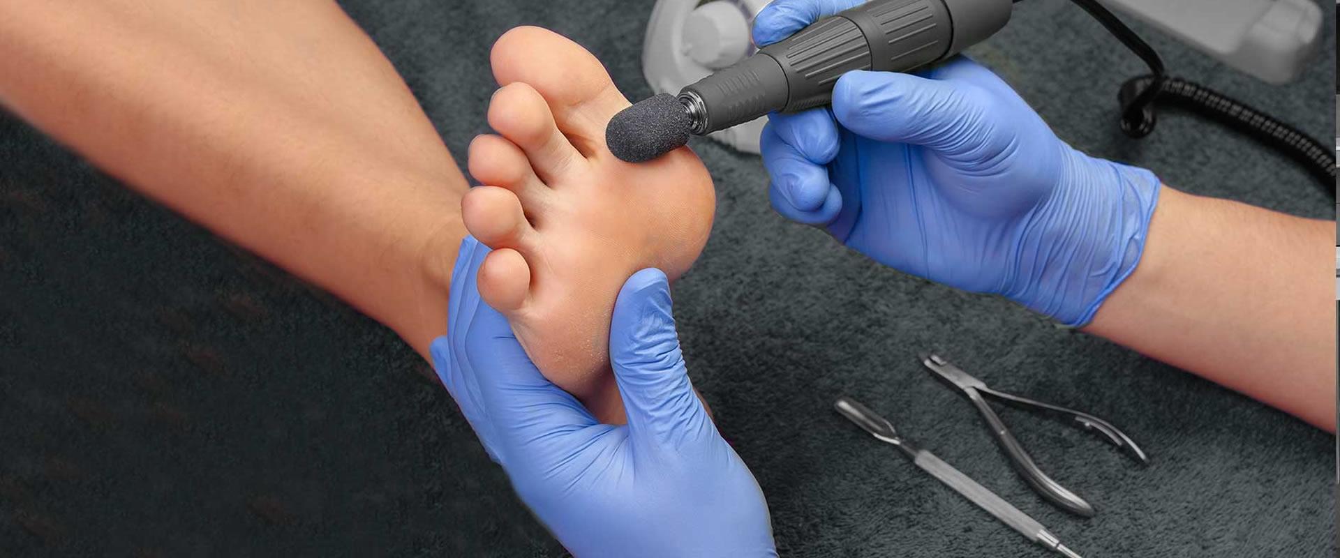 Мозоль на мизинце ноги: как избавиться от образований, как удалить твердые или вросшие уплотнения на пальцах, можно ли вывести и вылечить их в домашних условиях, если они болят, а также какое лечение наростов эффективнее?