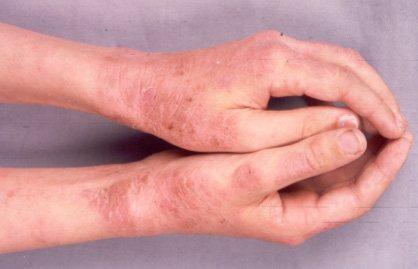 Цветной лишай у человека: фото, лечение, симптомы