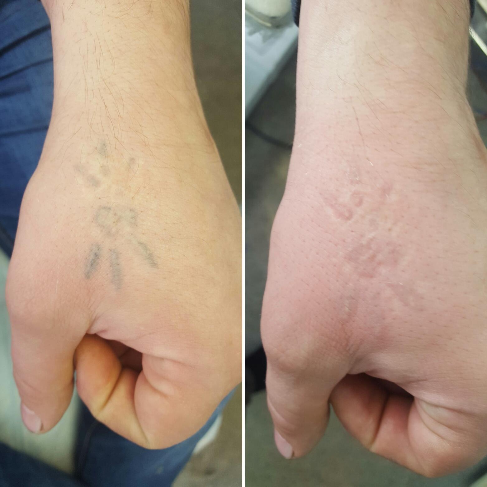 Удаление тату лазером: цена, плюсы и минусы, фото до и после