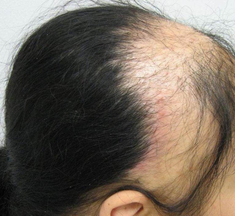 По каким причинам у ребенка в 3 года выпадают волосы и чем лечить?
