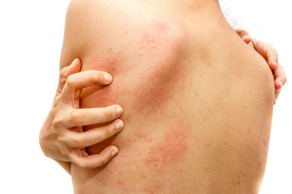 Как лечить крапивницу? крапивница - симптомы, лечение у взрослых и детей