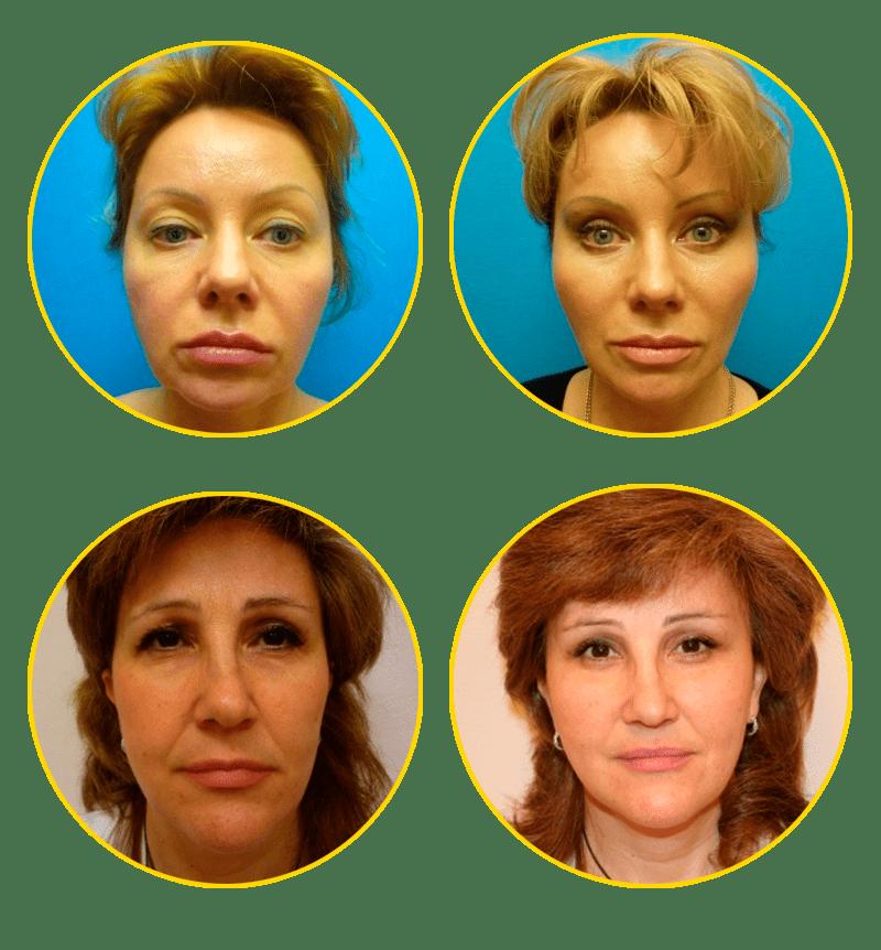 Эффективность и особенности проведения липофилинга носогубных складок
