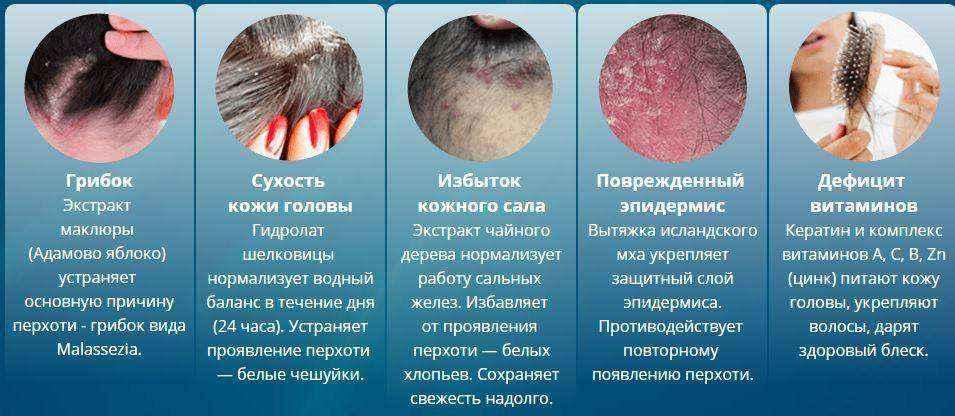 Почему болит кожа головы и выпадают волосы?