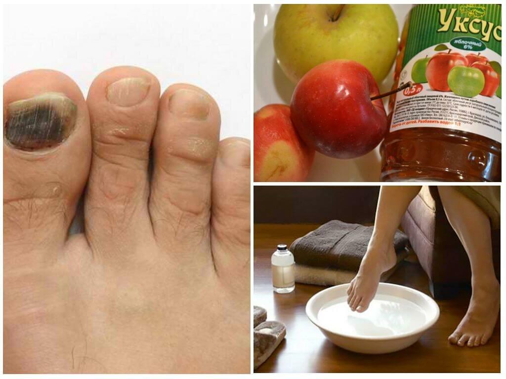 Лечение грибка ногтей и кожи бабушкиными средствами