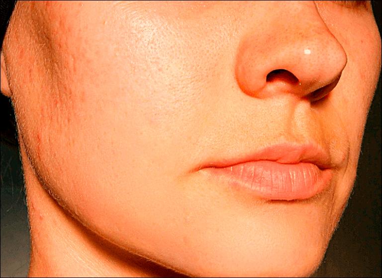 Как убрать шрамы и рубцы в домашних условиях. 10 способов