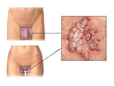 Гигантская кондилома - причины, признаки, симптомы и лечение