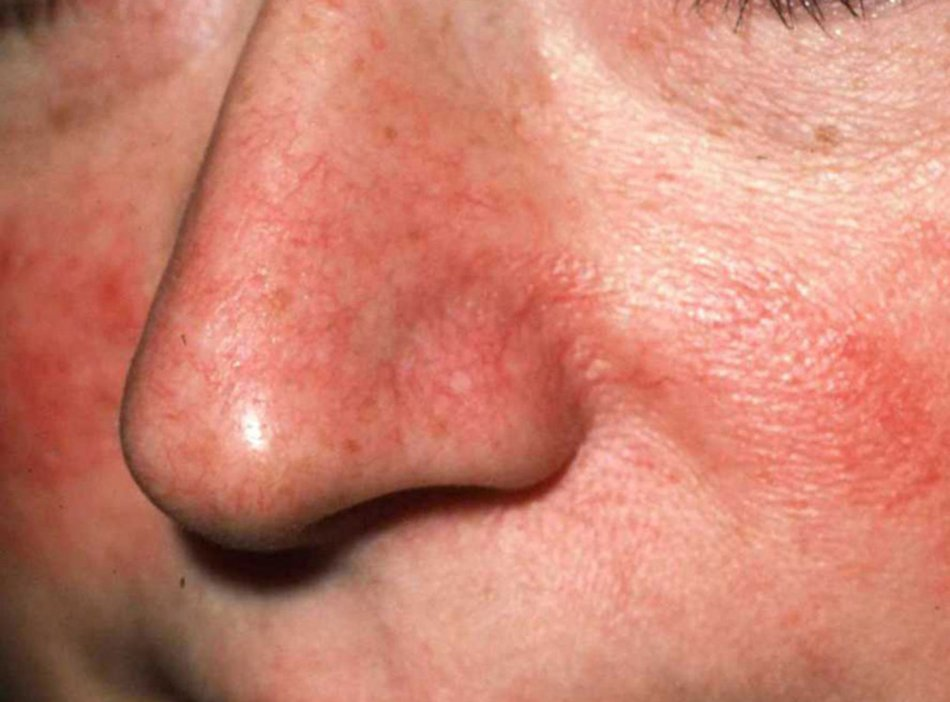 Покраснение на лице, возле носа, на щеках. как убрать, раздражение, аллергию, зуд