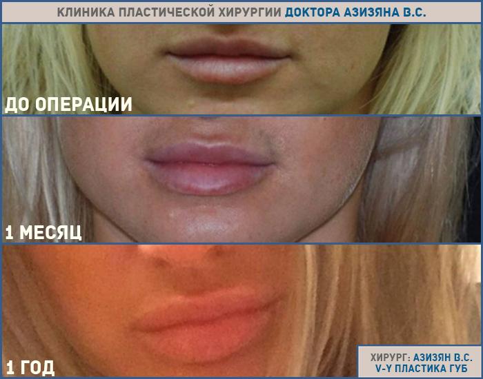 Способы увеличения губ — достоинства и недостатки